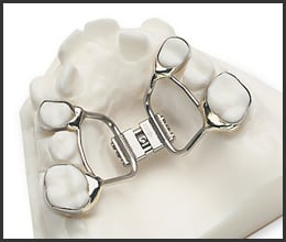 best-orthodontist-west-orange-nj
