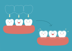What is an Elite Invisalign Preferred Provider?