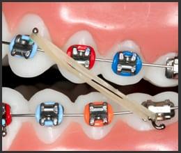 paramus-orthdontist-braces
