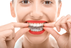 What Problems Can Invisalign Correct?