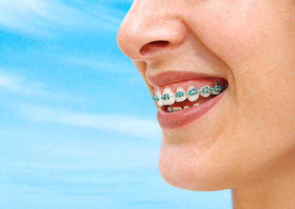 braces near ridgewood nj