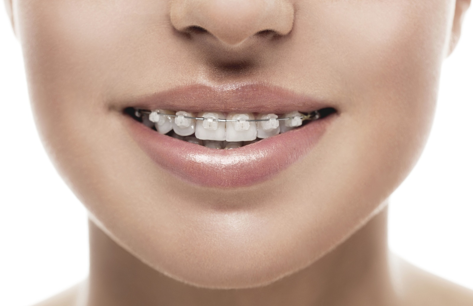 cost of braces near me