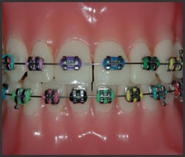 essex-county-orthodontist-office