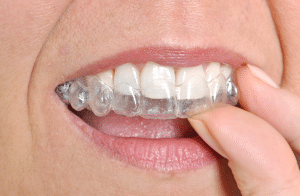 invisalign aligners everything you need to know west orange nj