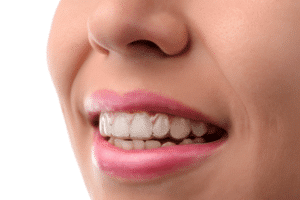 What Can I Eat With Invisalign?