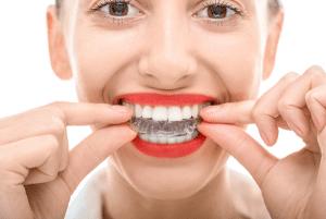 invisalign orthodontist in rochelle park nj
